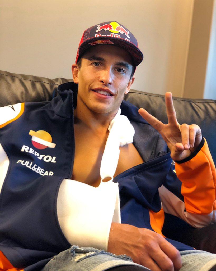 Marc Marquez már gyógyul